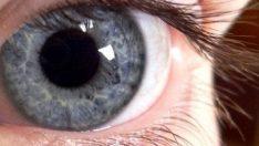 Göz kuruluğunun çaresi kendi kanınızda!