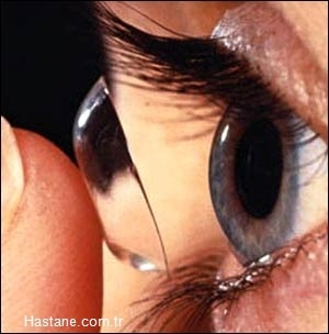 Kontakt lesnleriniz varsa kimyasala maruz kalmayan birinden lenslerini çıkarmasını isteyin.