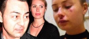 Serdar Ortaç'ın karısı Chloe, ölümden döndü!