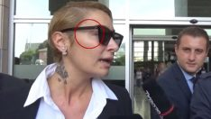 Ahmet Kural'dan şiddet gören Sıla'nın yüzündeki iz dikkat çekti!