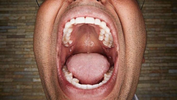 Kim Milyoner Olmak İster Vijay Kumar sorusu: Guiness Dünya rekorlarında dünyanın en çok dişli insanı Hintli Vijay Kumar'ın kaç tane dişi vardır?