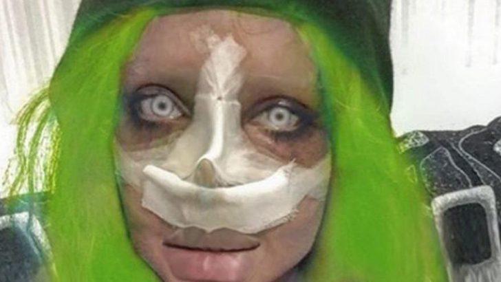 Angelina Jolie'ye benzemeye çalışan İranlı kadın 51'inci ameliyatını oldu