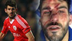 Maçta yüzüne tekme gelen futbolcunun son hali yürek burktu!