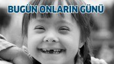 Bugün Down Sendromu Günü! 21 Mart Dünya Down Sendromu Günü'nün önemi nedir?