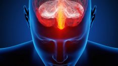 SSPE (Subakut Sklerozan Panensefalit) hastalığı nedir? SSPE hastalığının nedenleri, belirtileri ve tedavisi…